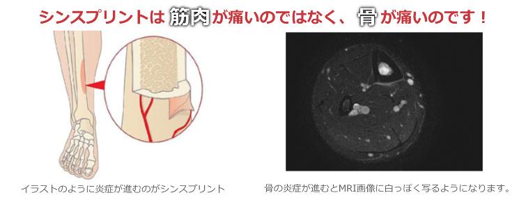 シンスプリントは筋肉が痛いのではなく、骨が痛いのです!